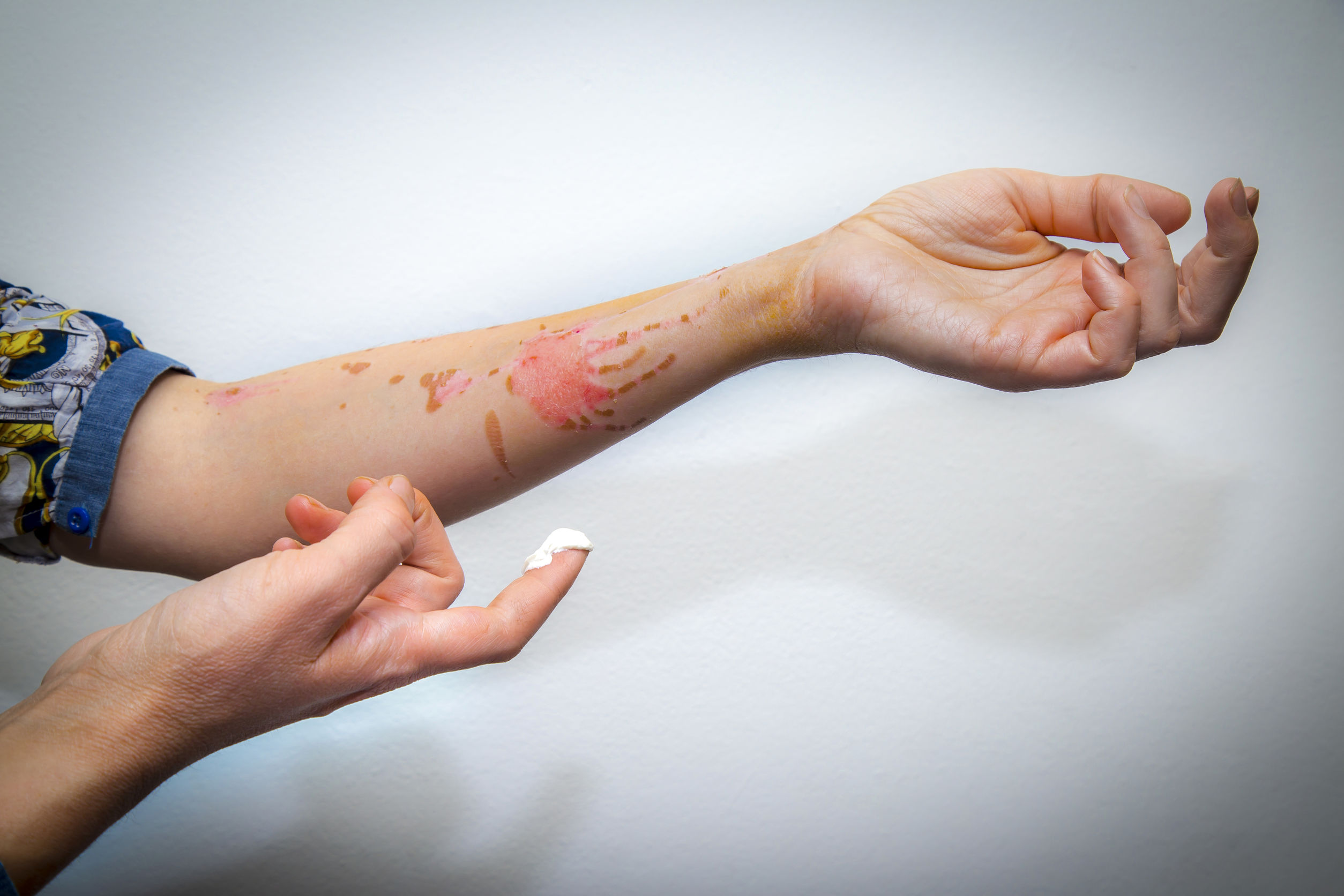 Do You Have Burn Injuries?